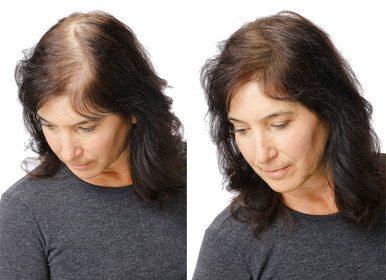 Grow Ultra - ingredienti - funziona - composizione - come si usa - capelli