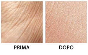 DermaVix - effetti collaterali - controindicazioni