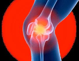 Artropant - effetti collaterali - controindicazioni