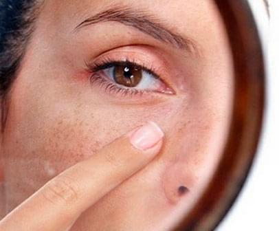 È possibile mantenere un viso luminoso senza interventi