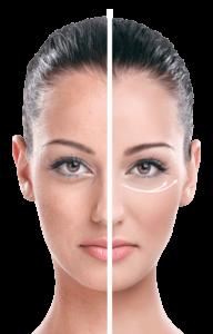 EyeLift - ingredienti - composizione - funziona - come si usa?
