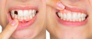 Happy Smile, come si usa, funziona, ingredienti, composizione